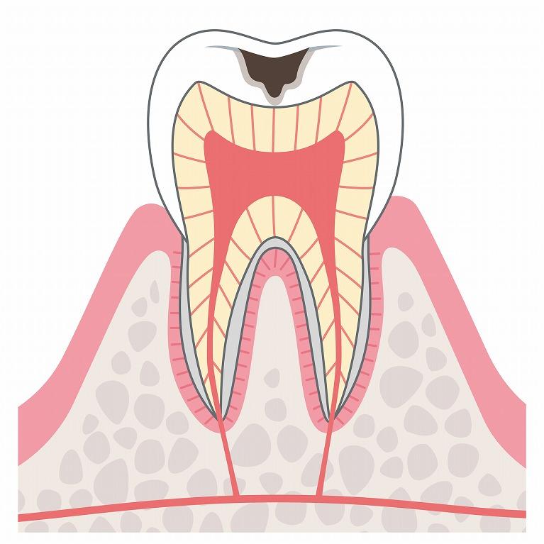 C2:象牙質まで進んだむし歯