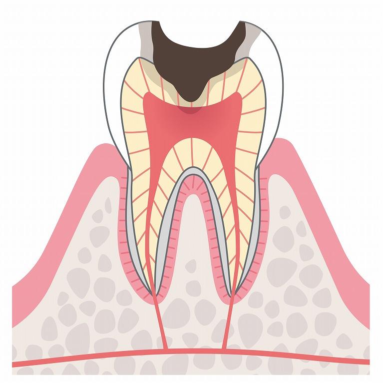 C3:歯髄まで進んだむし歯
