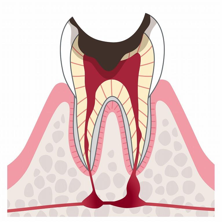 C4:歯根だけ残ったむし歯