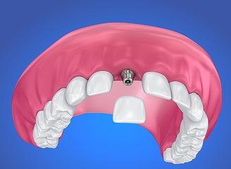 将来に多くの歯を残すための治療法