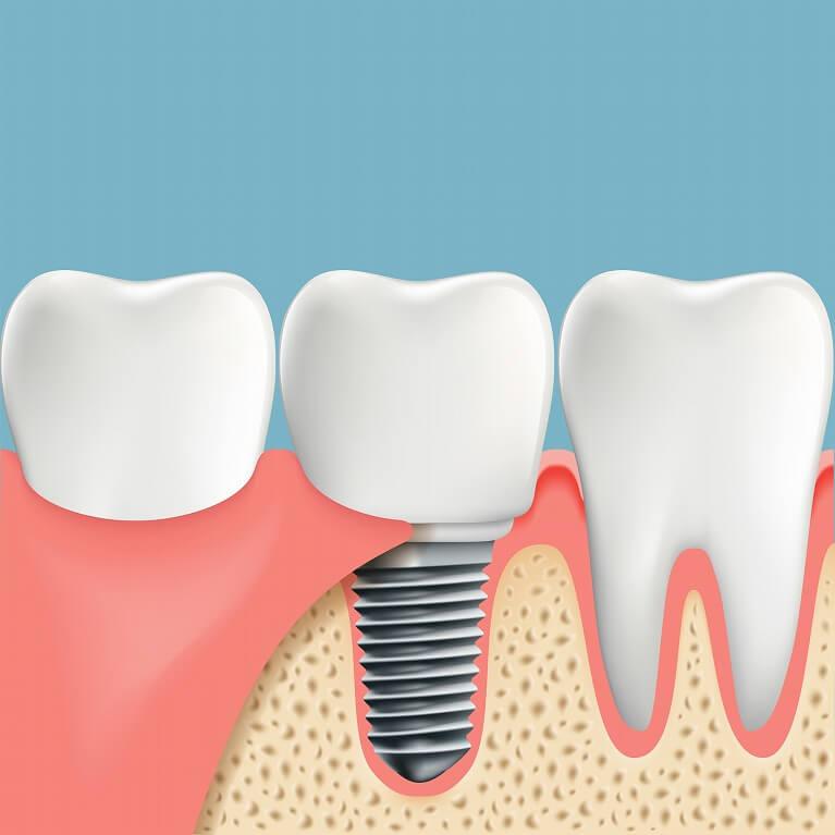 インプラントに取り付ける歯の設置